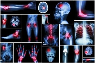 sclerosi multipla cure e risonanza magnetica